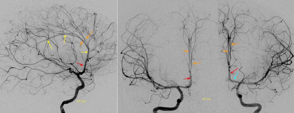 Anterior Cerebral Artery | neuroangio.org