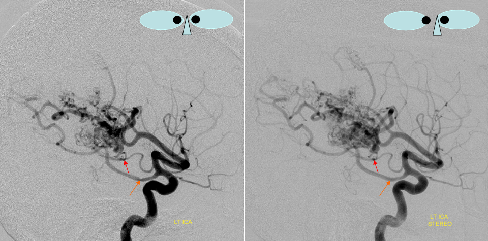 Anterior Choroidal Artery Neuroangio
