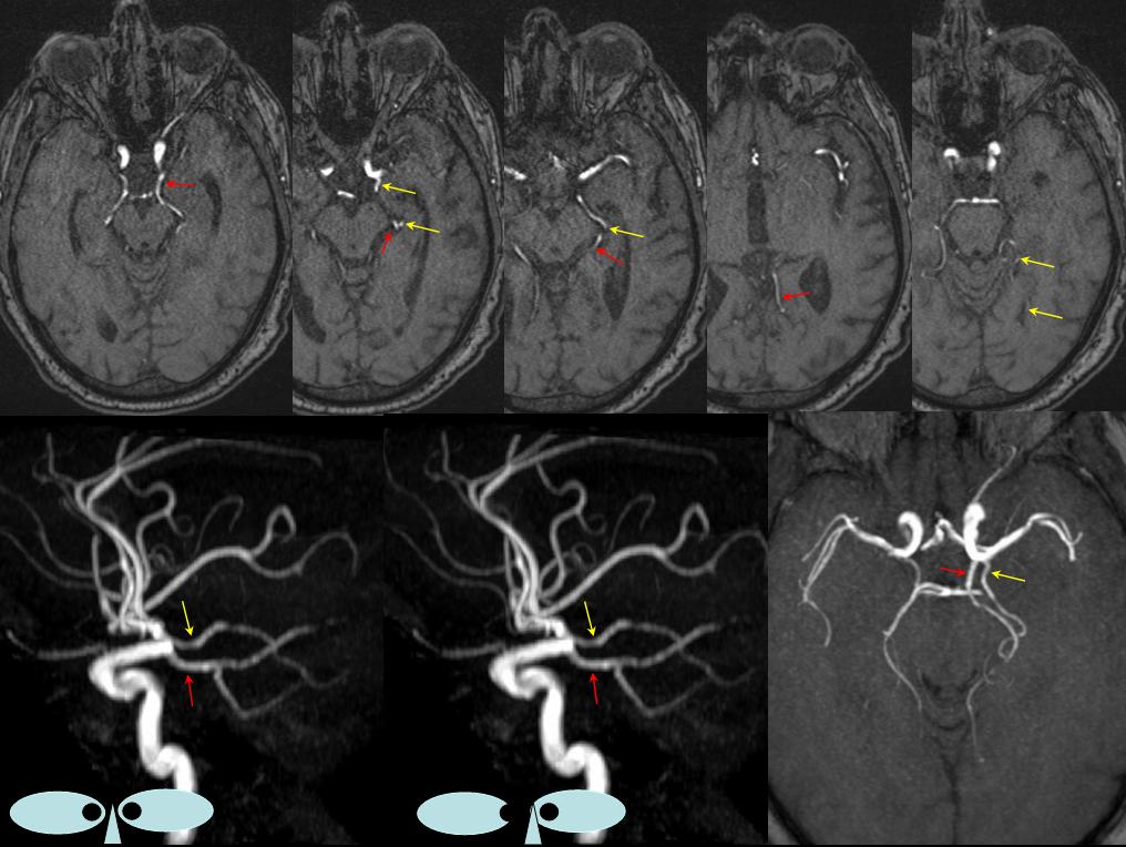 Anterior Choroidal Artery   neuroangio.org