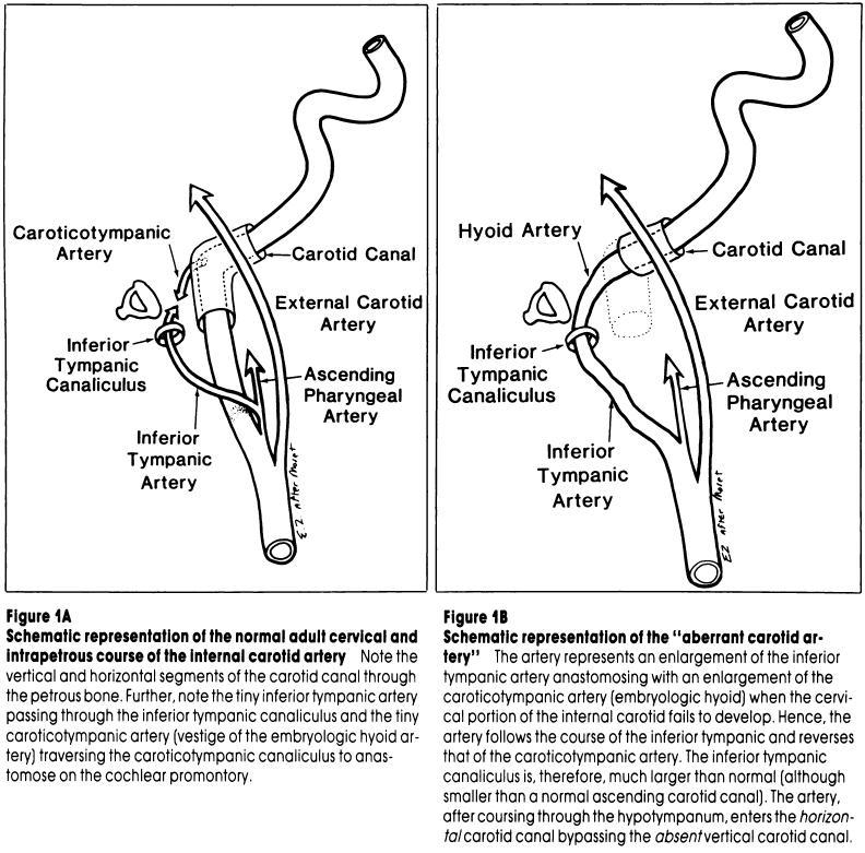 Ascending Pharyngeal Artery | neuroangio.org
