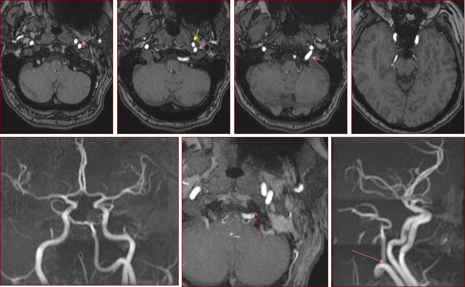 Ascending Pharyngeal Artery   neuroangio.org