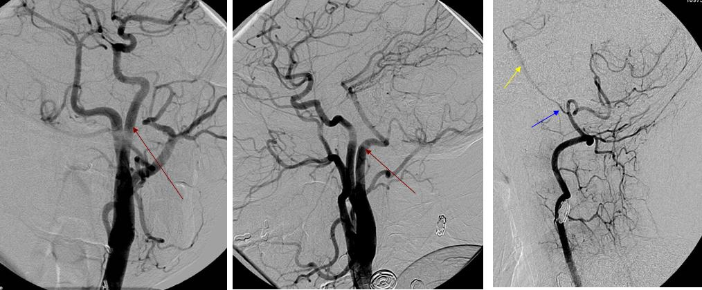 Persistent Hypoglossal Artery Persistent Hypoglossal
