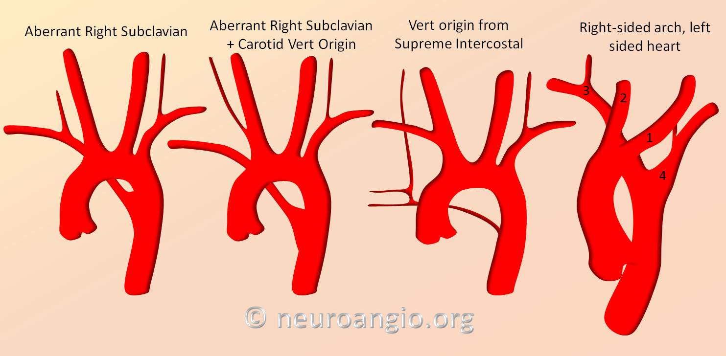 Aortic Arch Neuroangio