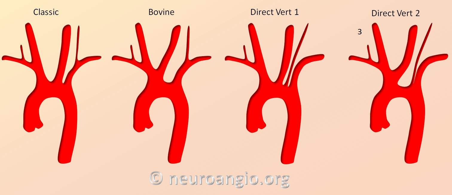 Aortic arch common variants