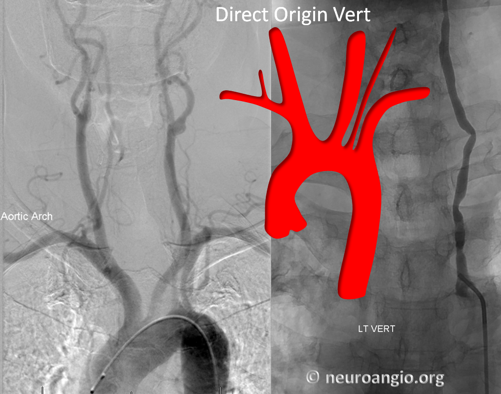 direct origin left vertebral artery