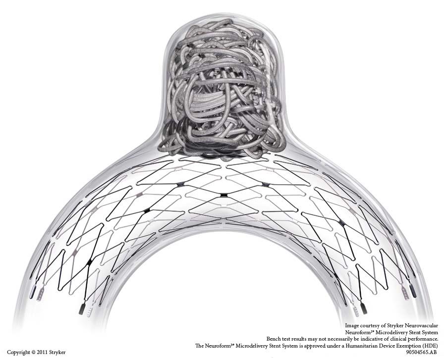 Neuroform EZ