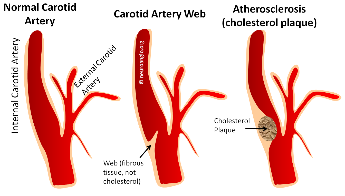 Case Archives — Carotid Web — a Rare Cause of Embolic Stroke ...