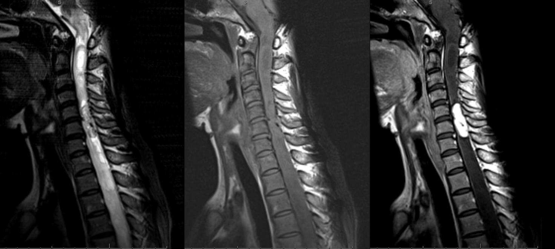 MRI preop hemangiopericytoma