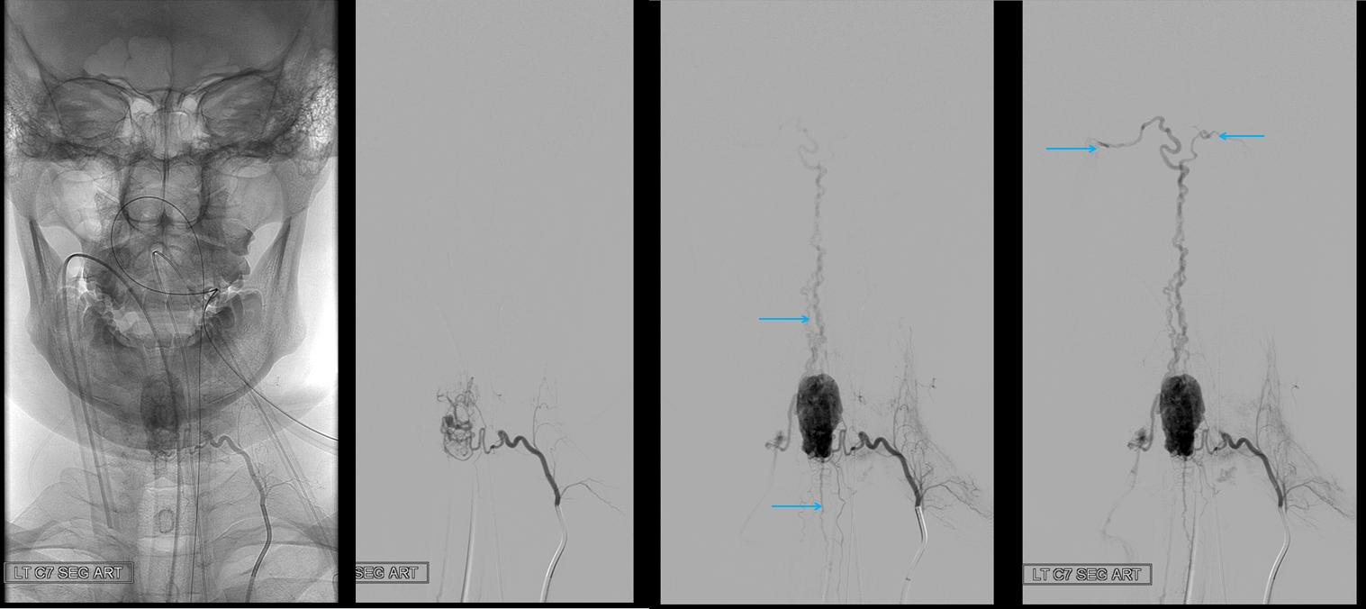 Angio Spinal Hemangiopericytoma