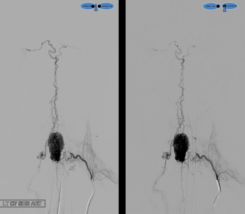 Angio Hemangiopericytoma stereo