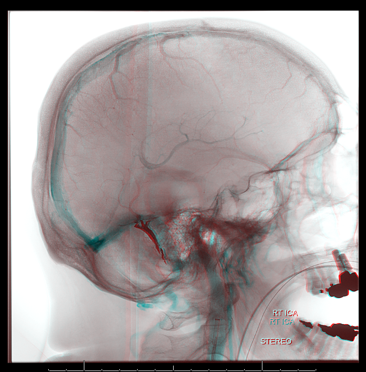 Archives-dural-fistula-superselectrive-embolization-z-anaglyph-4.PNG (742Ã?754)