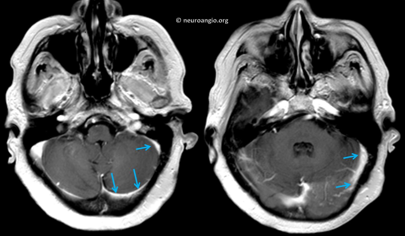 http://www.neuroangio.org/wp-content/uploads/Archives/Dural_Fistula_Venous_Infarct/Archives_dural_fistula_venous_infarct_04.png