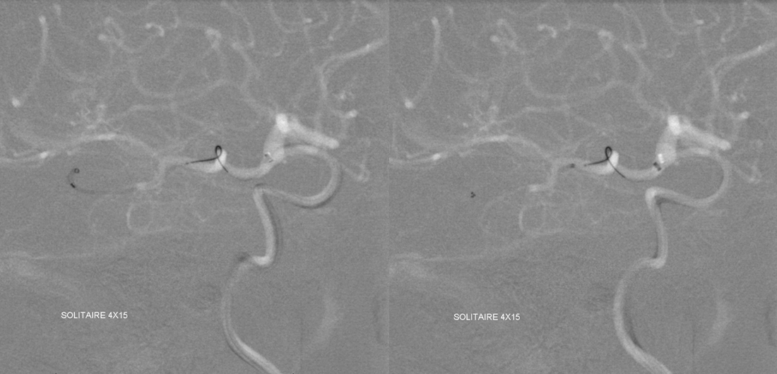 Stroke thrombectomy something for everyone
