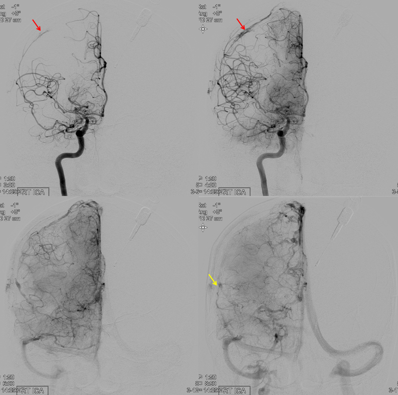 MMA recurrent meningeal fistula