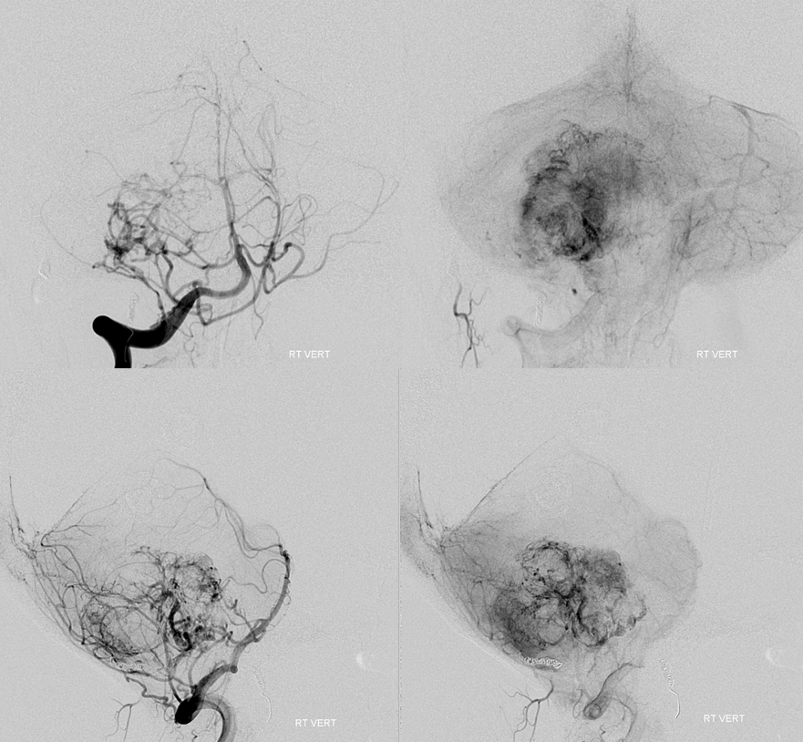 Hemangiopericytoma Embolization and Resection