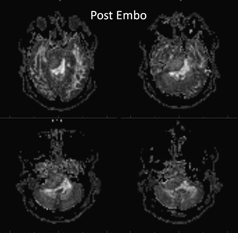 Petroclival Meningioma Embolization