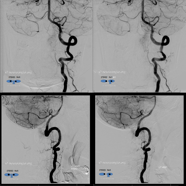 Foramen Magnum Mening Embolization