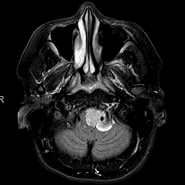 Foramen Magnum Meningioma Embolization