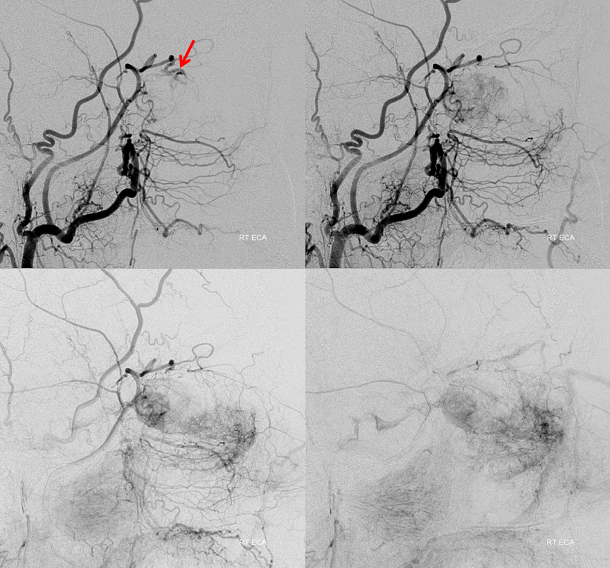 Orbital Metastasis Embolization