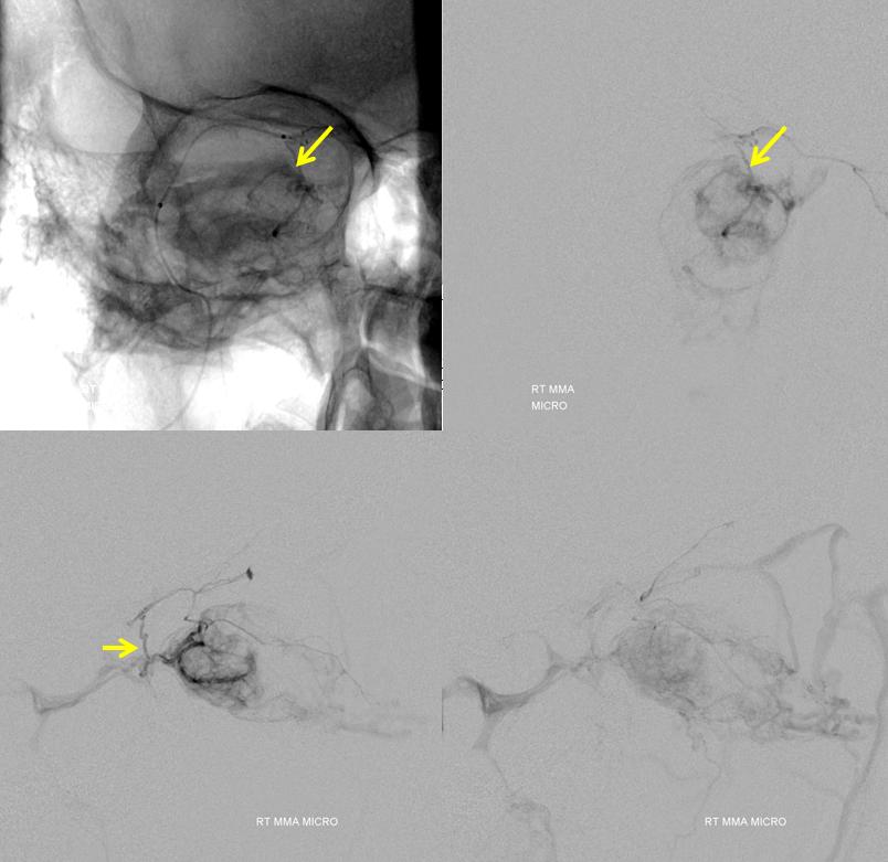 Orbital Metastasis Embolization