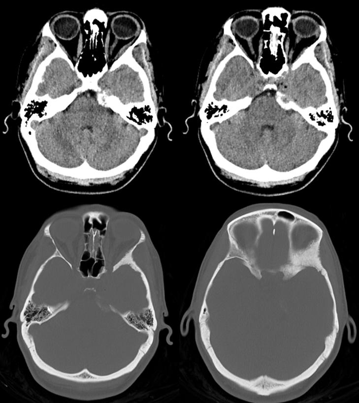 skull base meningioma embo