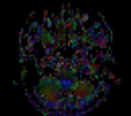 Clival and Foramen Magnum Meningioma