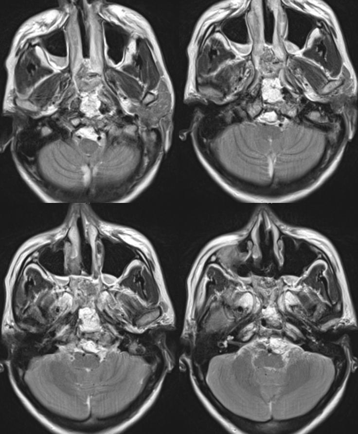 clival meningioma embolization