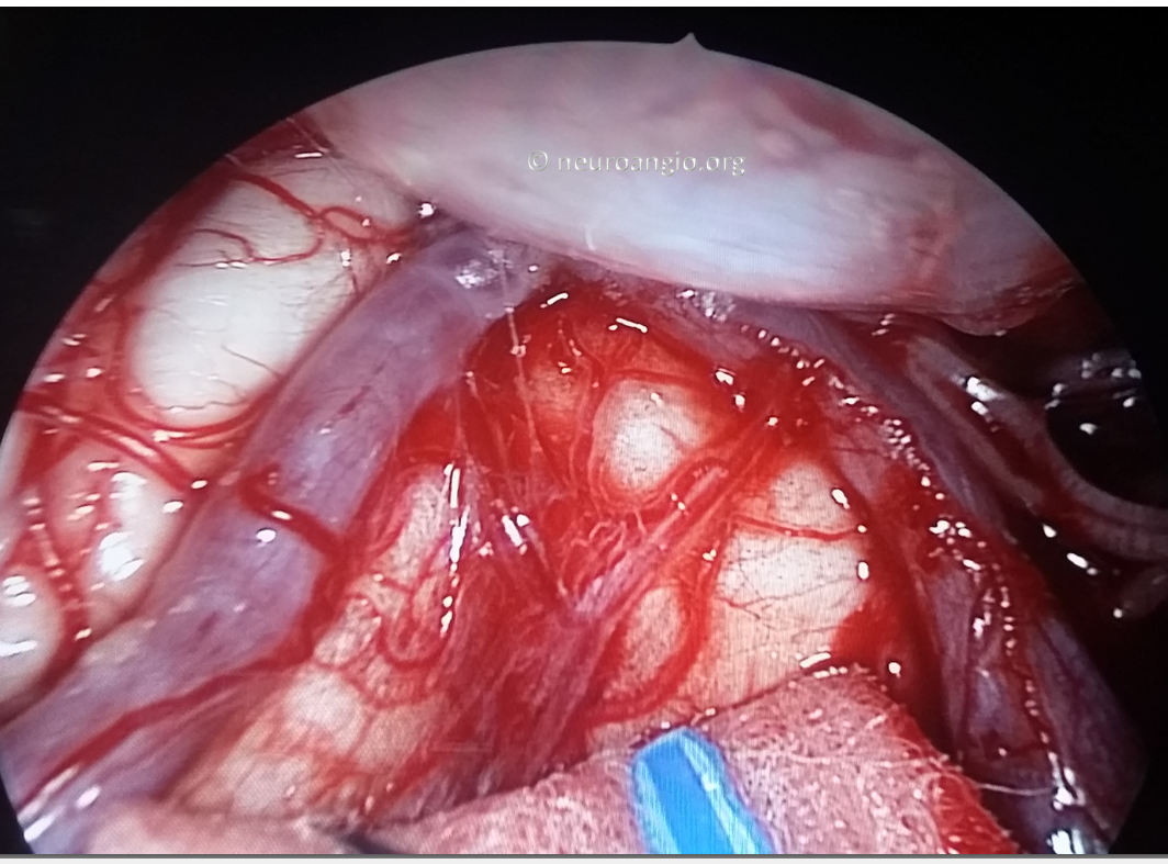 Clival Meningioma Resection Transnasal