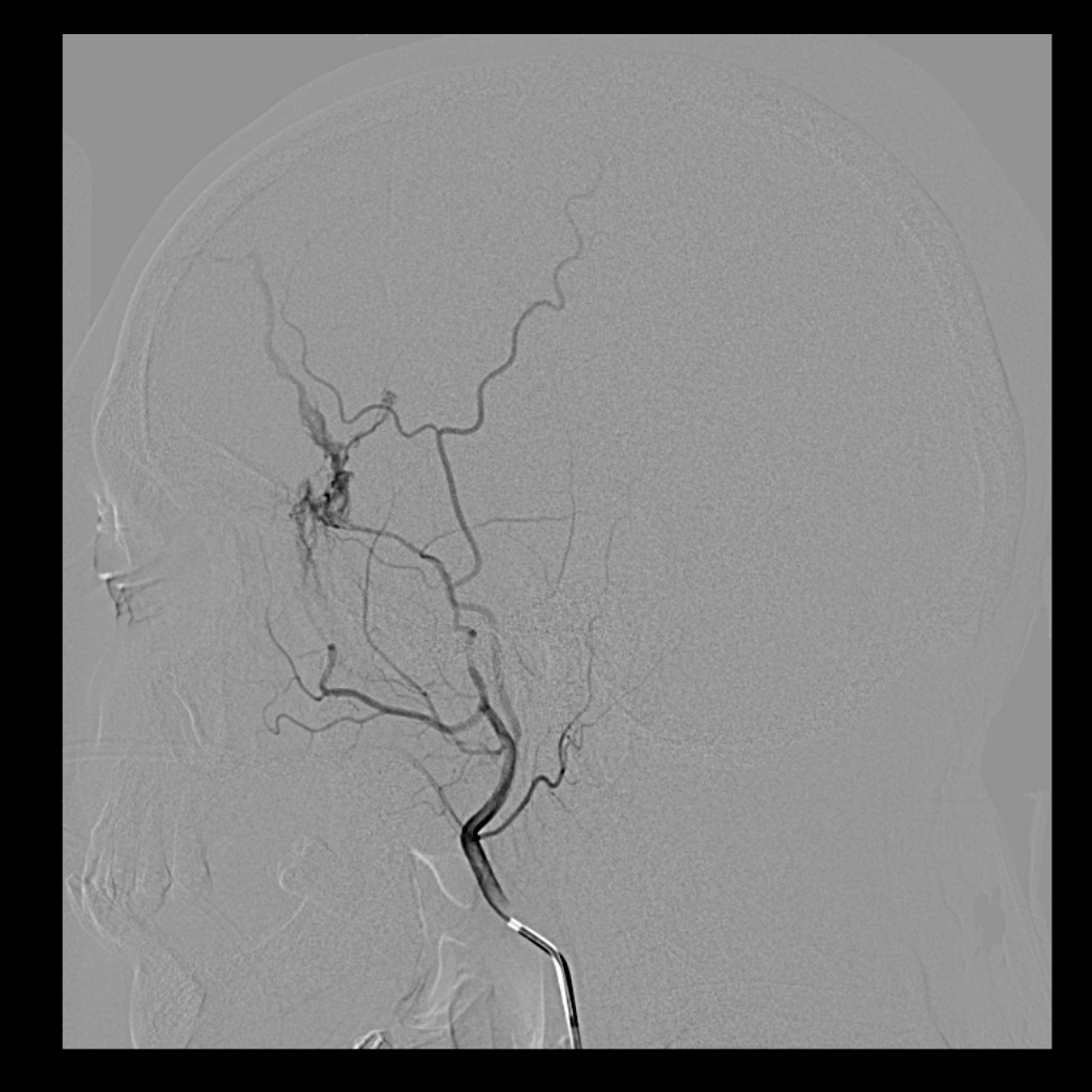 Epidural Hematoma Middle Meningeal Artery Fistula