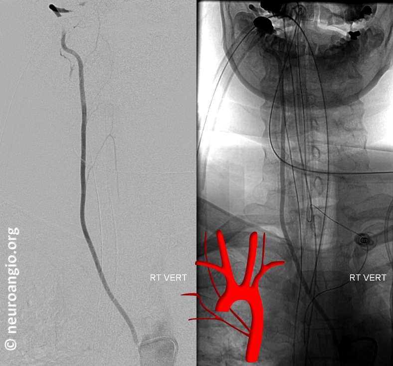 supreme intercostal aortic origin of right vertebral artery