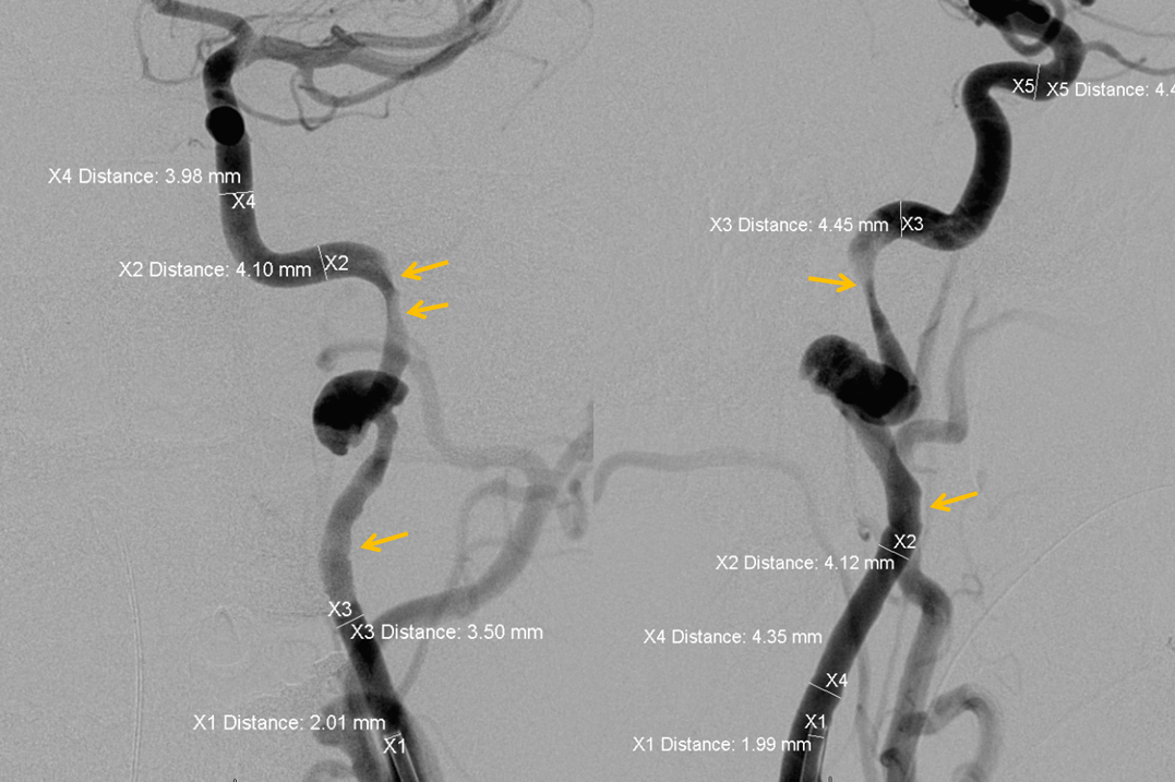 http://www.neuroangio.org/wp-content/uploads/Cases/Archives_Carotid_Dissection_LCN_3.png