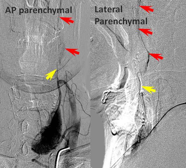 arteriitis temporalis mrt