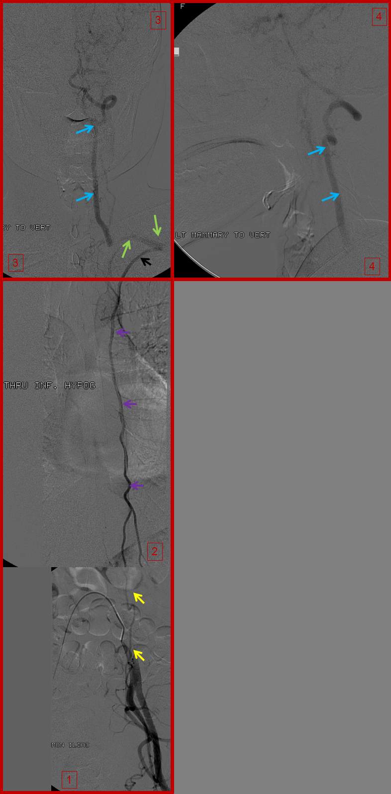 Inferior Epigastric Artery Angiogram images