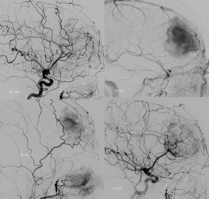 Introductory brain angiography | neuroangio. Org.