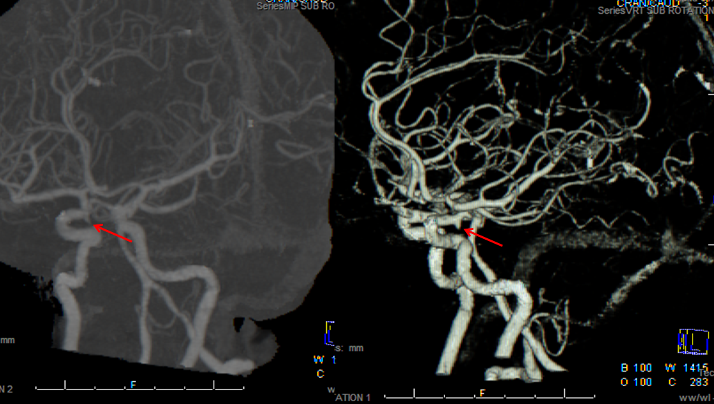 Introductory Brain Angiography | neuroangio.org