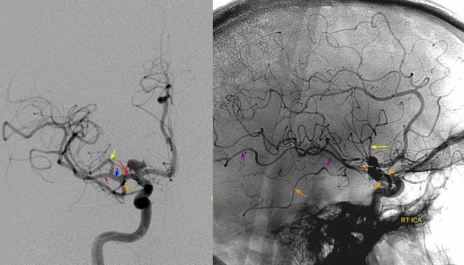Middle Cerebral Artery Neuroangio