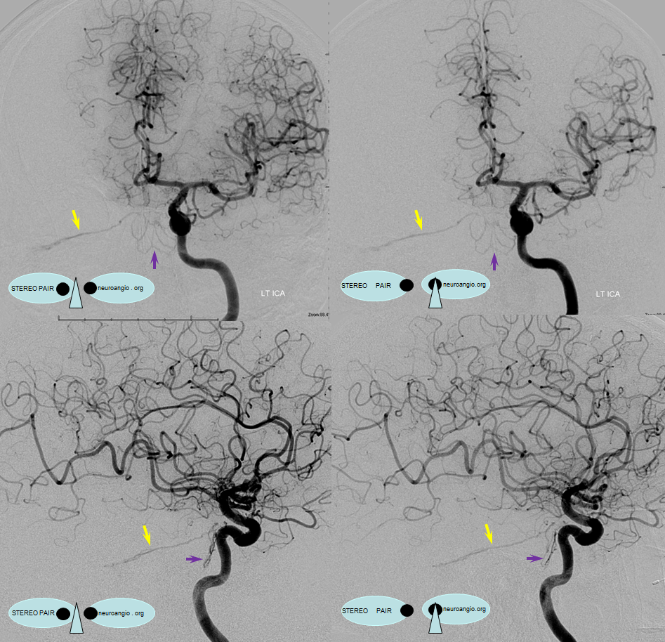 http://www.neuroangio.org/wp-content/uploads/MHT/MHT_lateral_tentorial_arcade_dural_fistula_clival_branches_2.png