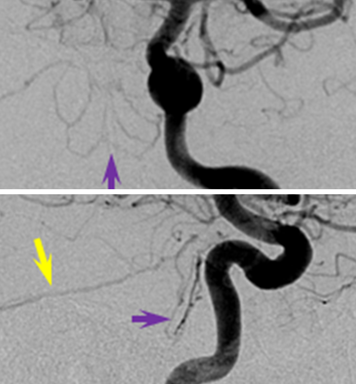http://www.neuroangio.org/wp-content/uploads/MHT/MHT_lateral_tentorial_arcade_dural_fistula_clival_branches_3.png