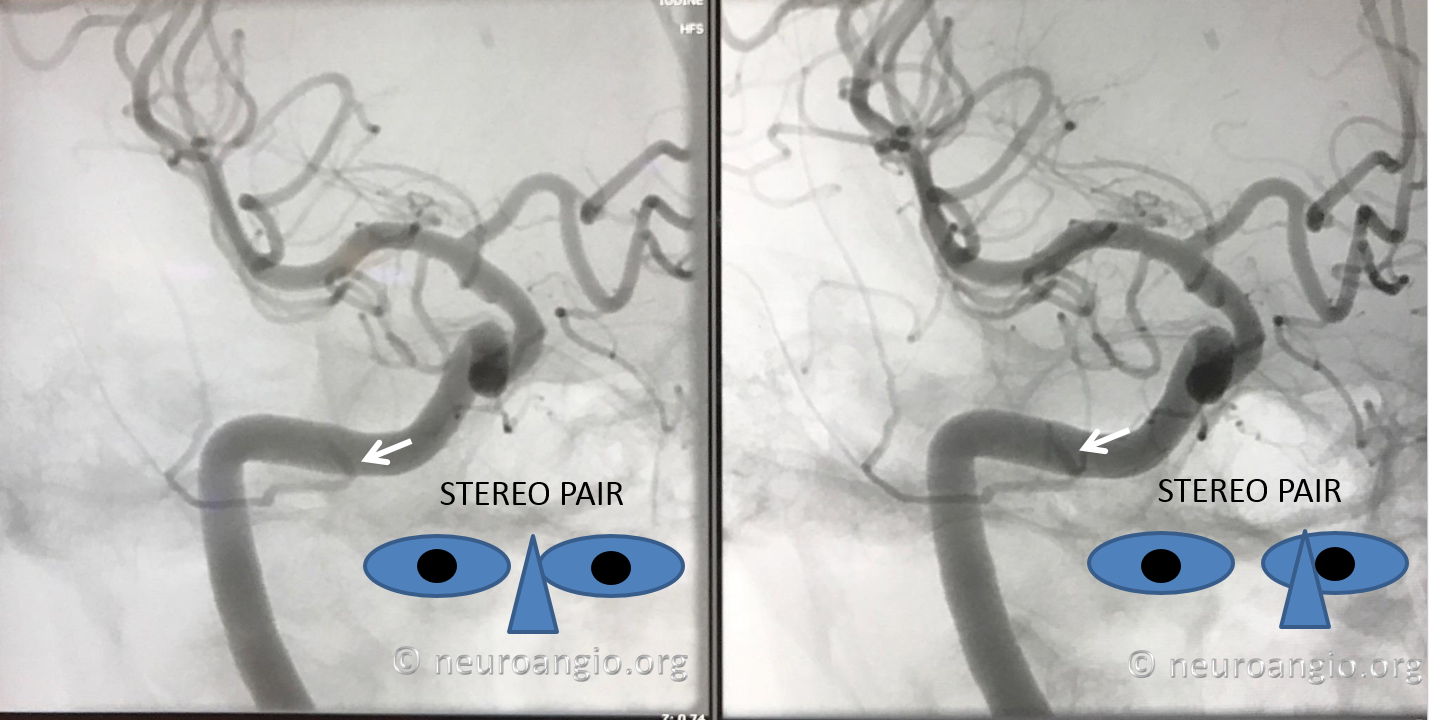 Persistent Stapedial Artery