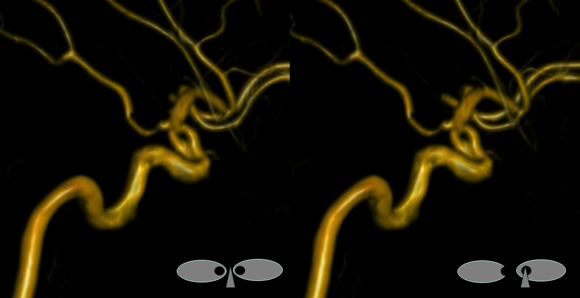 Supraclinoid Carotid Artery Fenestration
