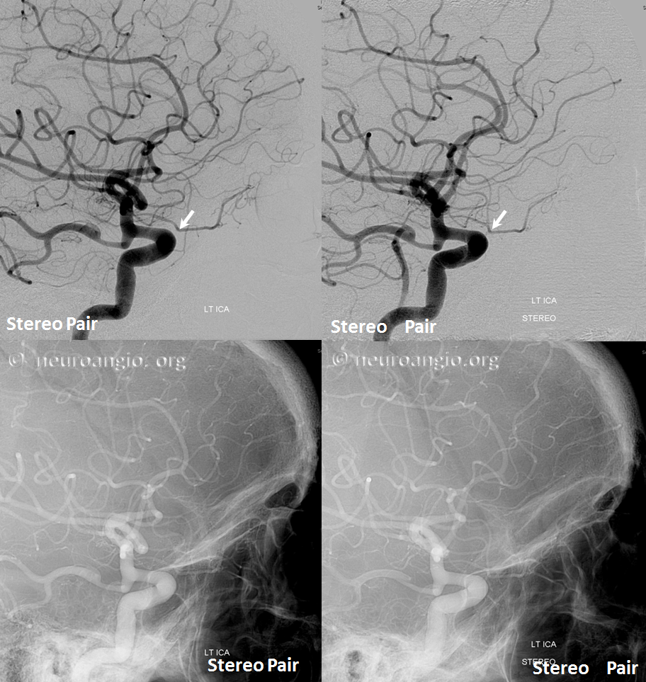 Ventral ophthalmic artery