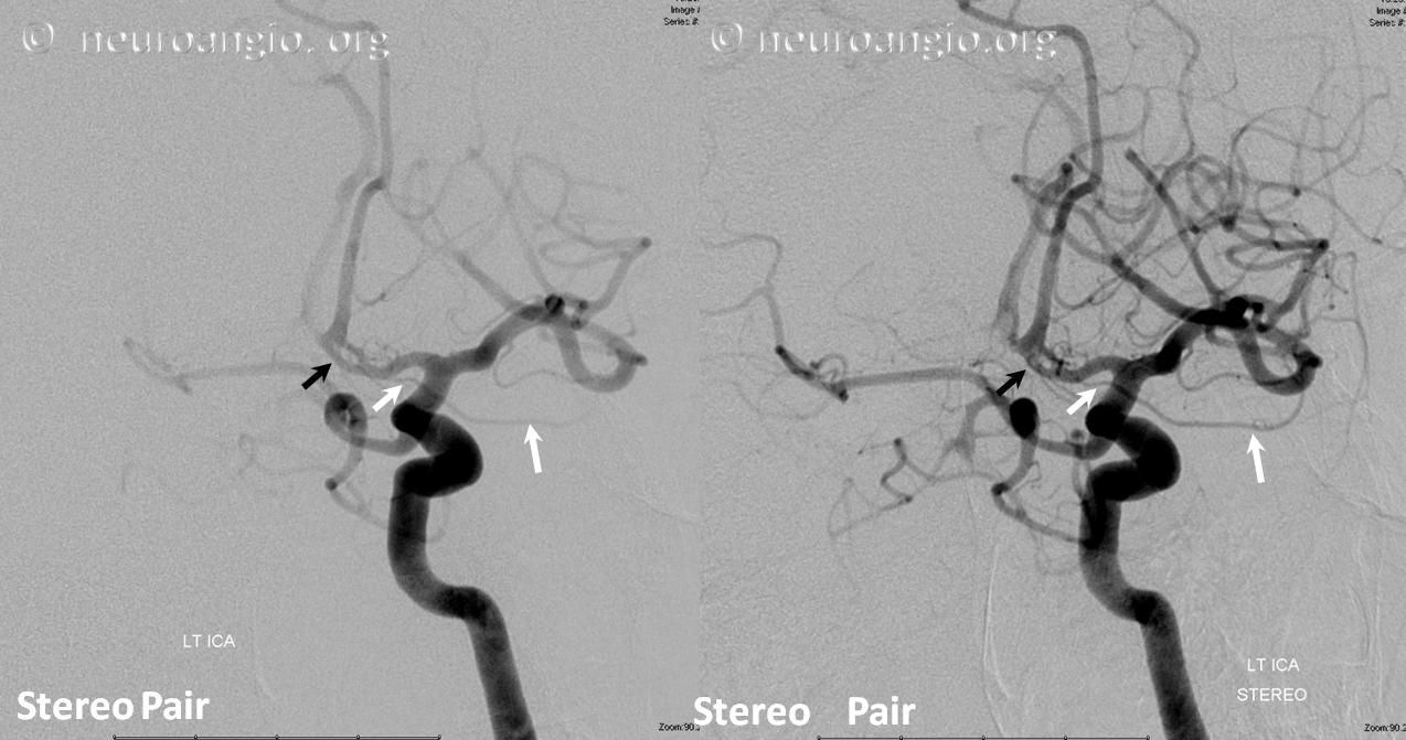 Ophthalmic Artery | neuroangio.org
