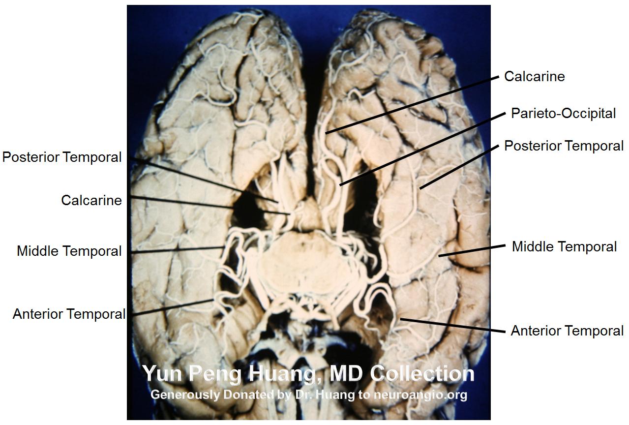 Posterior Cerebral Artery | neuroangio.org