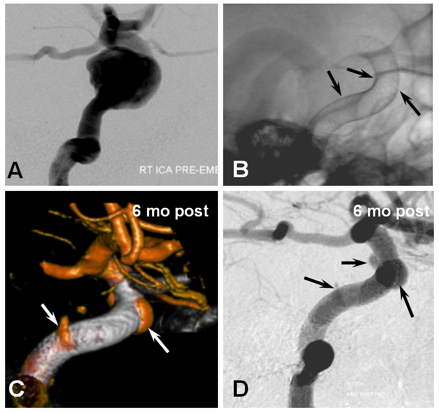 Pipeline Aneurysm Treatment