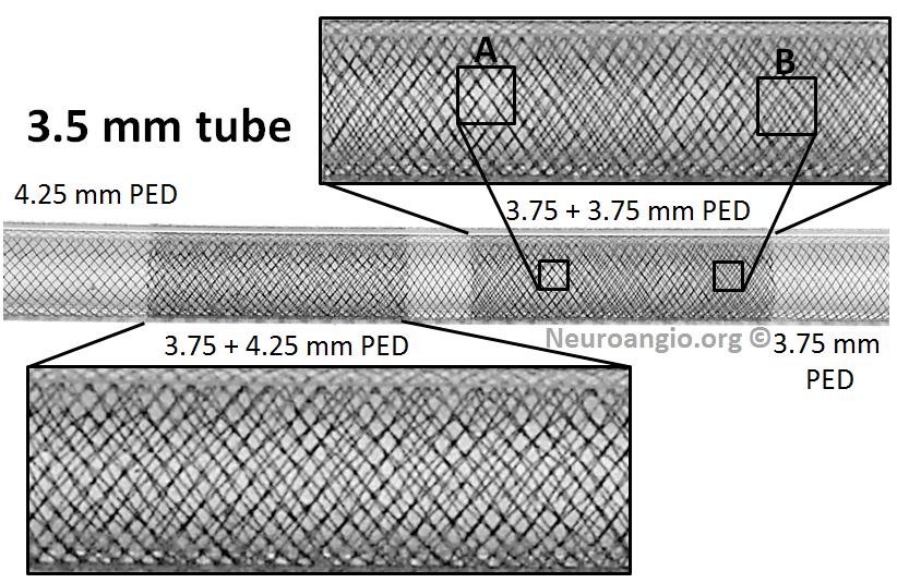 pipeline aneurysm treatment