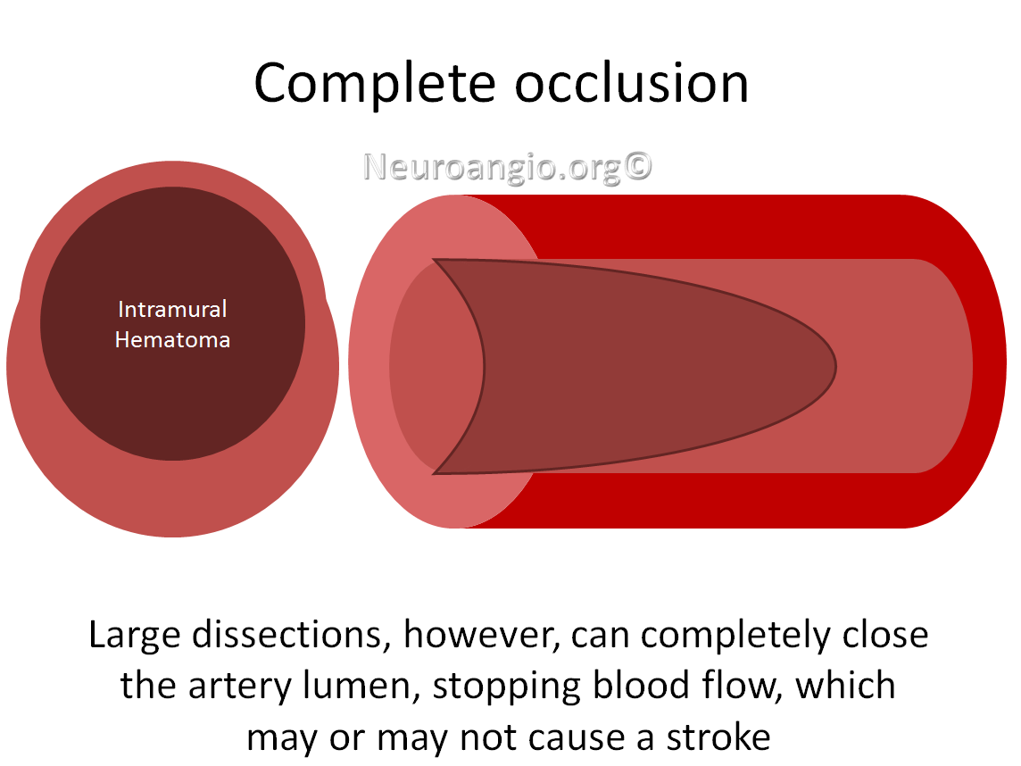 http://www.neuroangio.org/wp-content/uploads/Patient_Information/Dissection/Dissection_labels_06.png