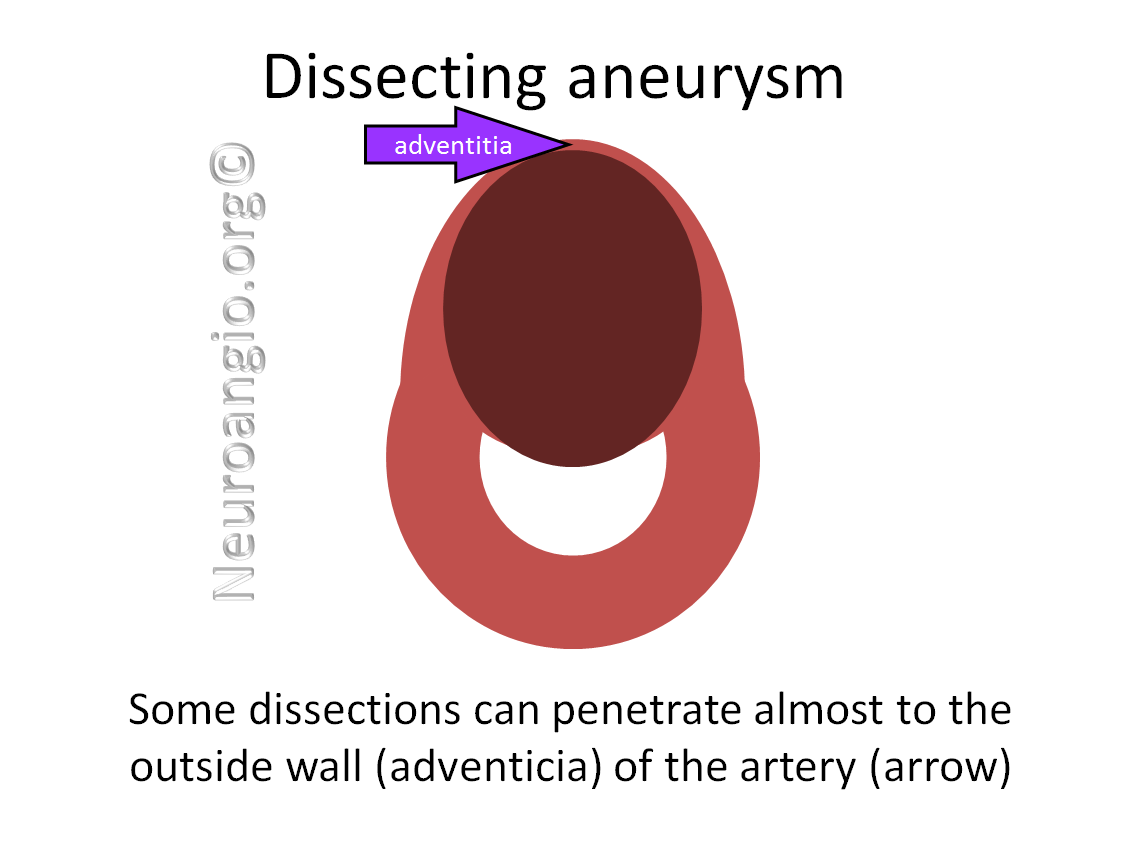 http://www.neuroangio.org/wp-content/uploads/Patient_Information/Dissection/Dissection_labels_07.png