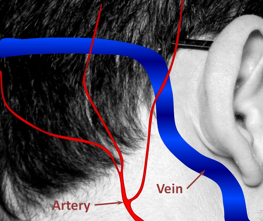 Brain Dural Fistula   neuroangio.org