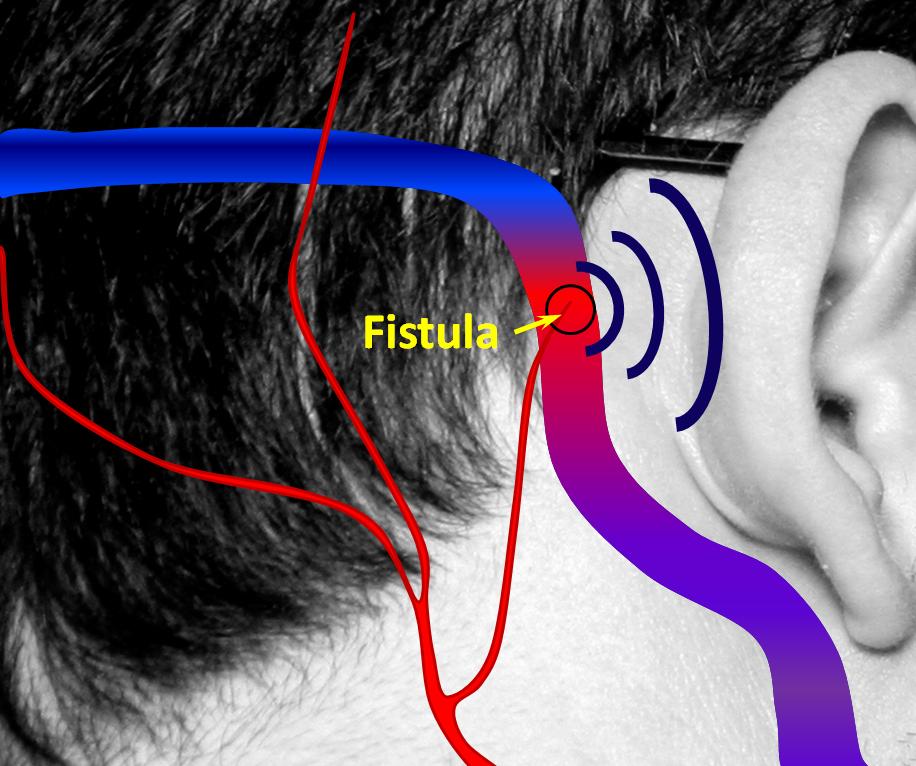 Brain Dural Fistula Neuroangio