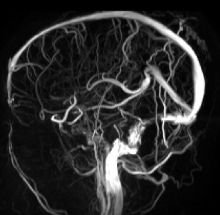 Pulsatile Tinnitus Intracranial Hypertension Venous Stenting